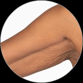 Arms area
