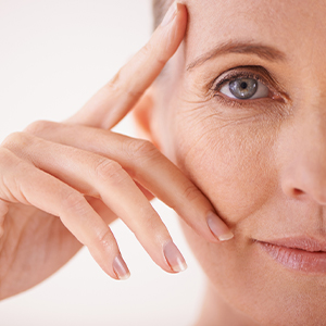 What Causes Crow's Feet & Under Eye Wrinkles?